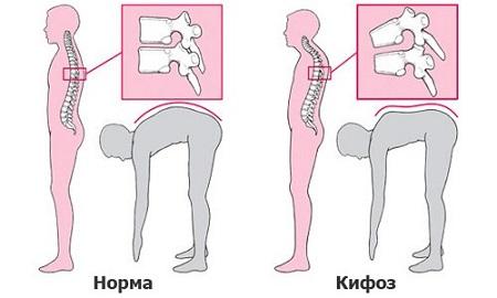 Диагностика кифоза (сутулости)